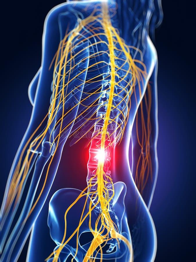 被突出的脊椎 向量例证