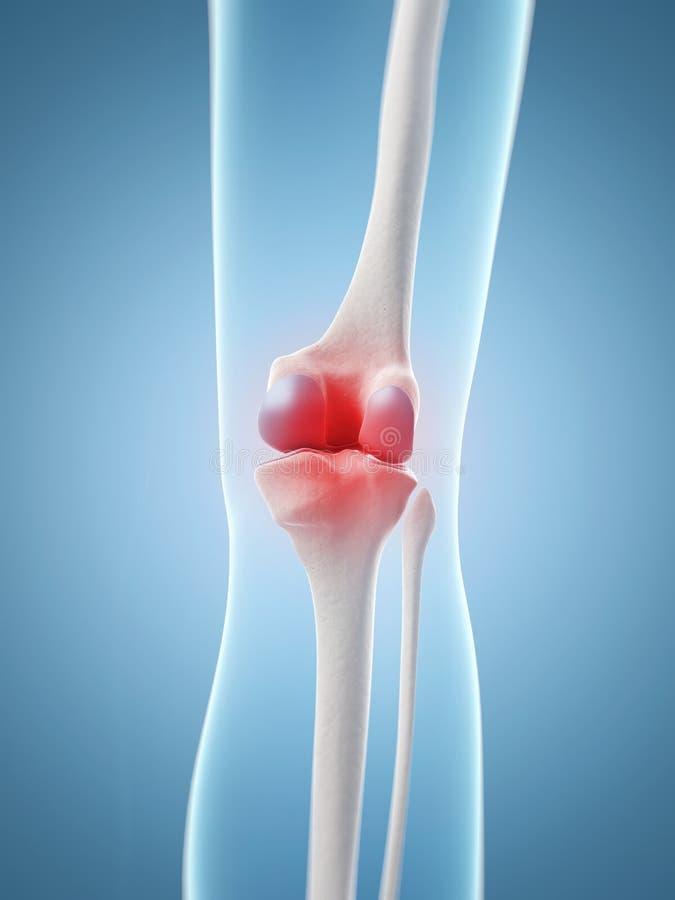 被突出的膝盖关节 库存例证