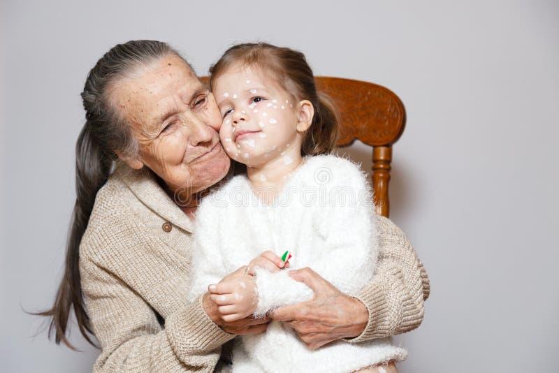 被编织的毛线衣拥抱孙女的有水痘的,白色小点,在面孔的水泡Ð ¡犹特人灰色长发祖母 概念 库存图片