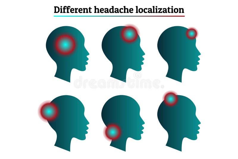 被设置的医疗infographic模板-头疼,偏头痛的类型和地方化 充满痛苦的人头剪影 库存例证