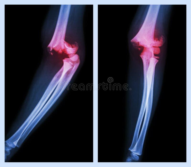 破裂手肘(左图象:旁边位置,正确的图象:前面位置) 免版税库存照片