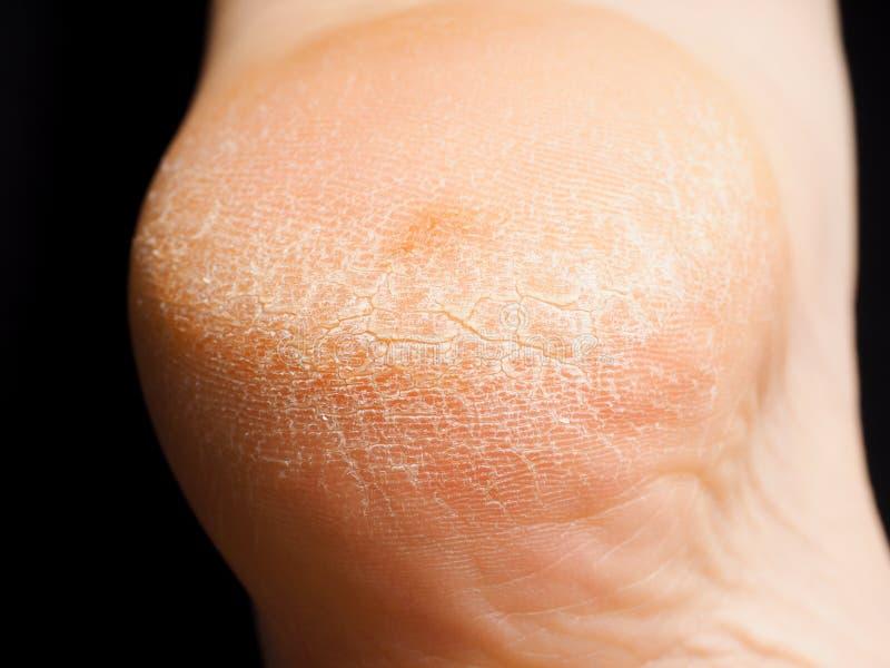 破裂的干性皮肤特写镜头在脚跟的 免版税库存图片