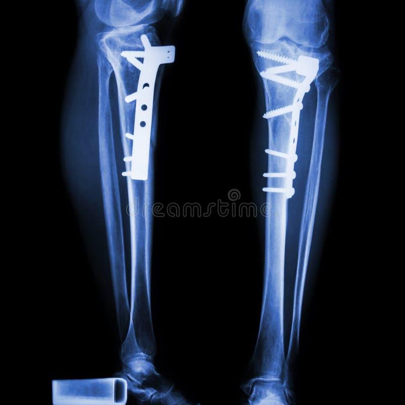 破裂胫骨(腿骨头) 它被管理和内部固定 库存照片
