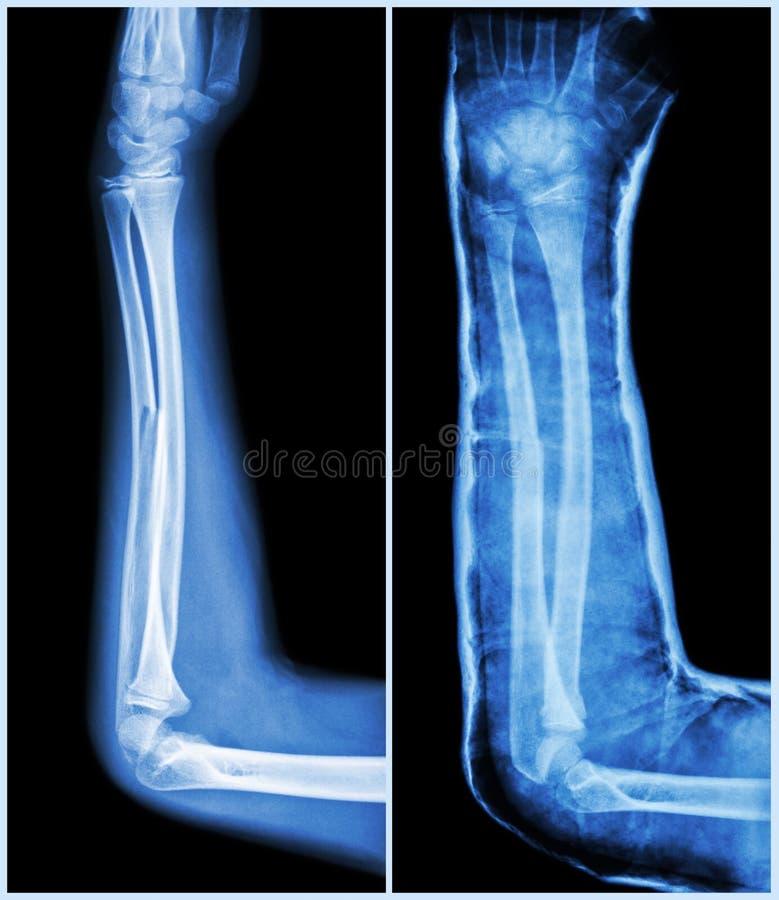 破裂轴尺骨的骨头(前臂骨头) :(离开:预处理,权利:Psot治疗(与塑象的藤条)) 库存图片