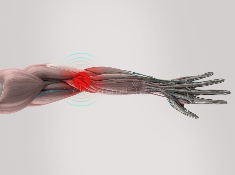 解剖学式样显示的手肘痛苦 皇族释放例证