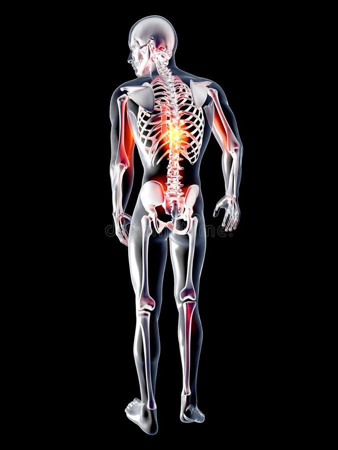 解剖学-背部疼痛 皇族释放例证