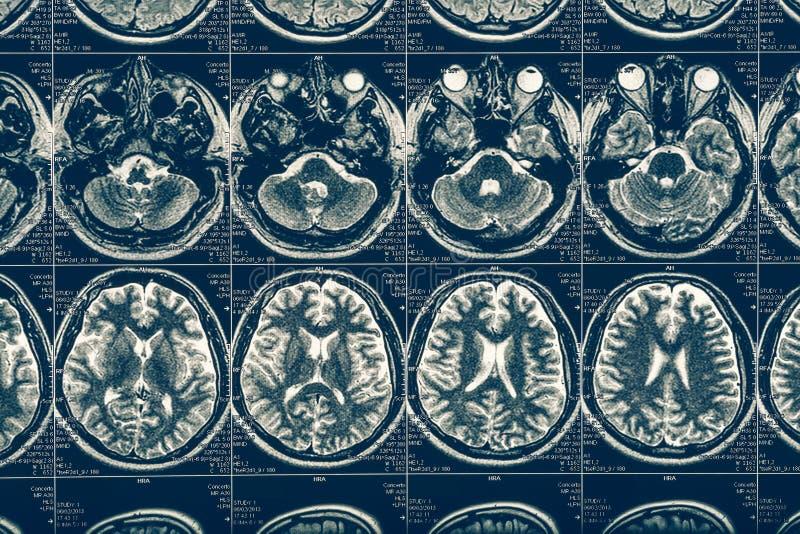 计算机X射线断层造影X-射线脑部扫描图象,内部脑水肿,神经学 免版税库存图片