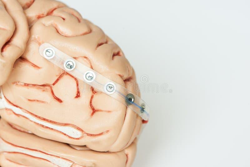 记录在脑子基地的脑波的硬膜下的栅格电极  免版税库存图片