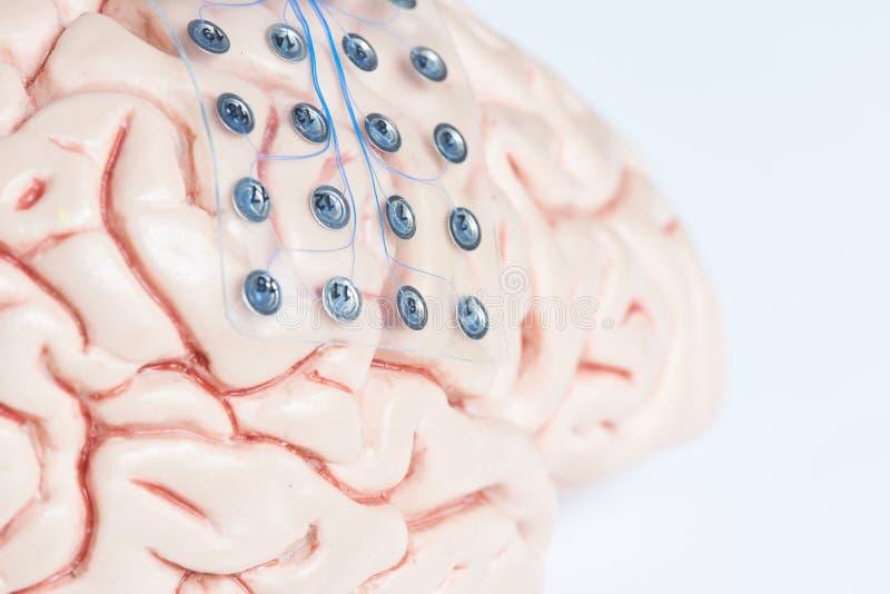 记录在脑子模型的脑波的硬膜下的栅格电极 免版税库存照片