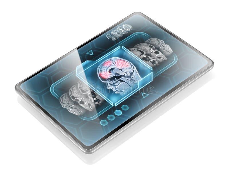 记录脑部活动扫描 库存照片