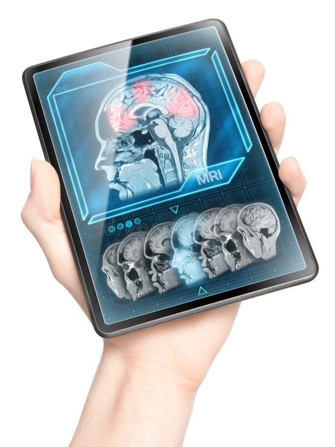 记录脑部活动扫描 库存图片