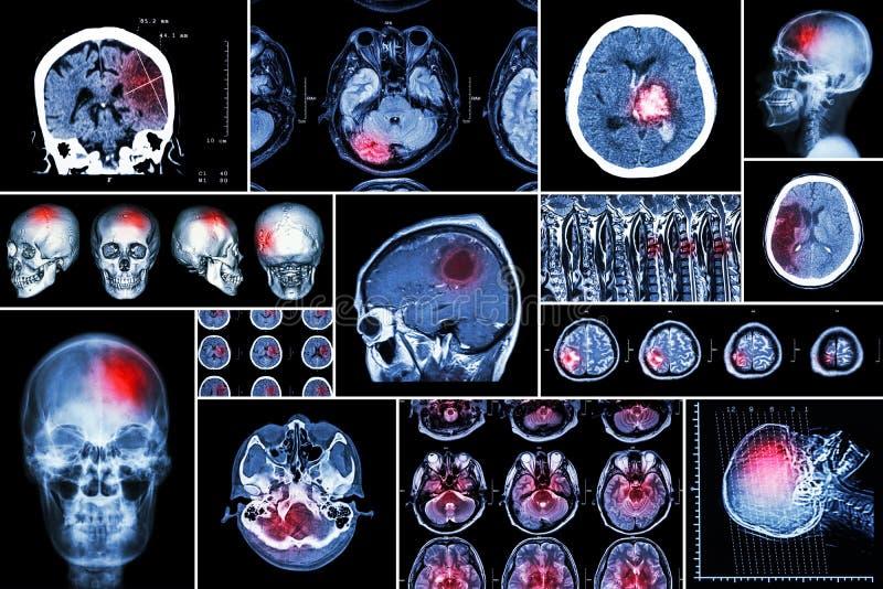 设置,脑疾病(大脑梗塞,出血性的冲程,脑瘤,与脊髓comp的圆盘herniation的汇集 库存图片