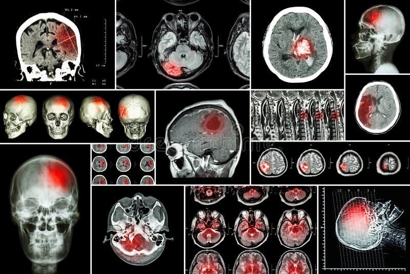 设置,脑疾病(大脑梗塞,出血性的冲程,脑瘤,与脊髓comp的圆盘herniation的汇集 库存照片