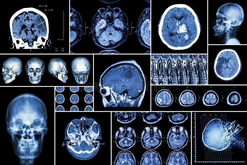 设置,脑疾病(大脑梗塞,出血性的冲程,脑瘤,与脊髓comp的圆盘herniation的汇集 免版税库存图片