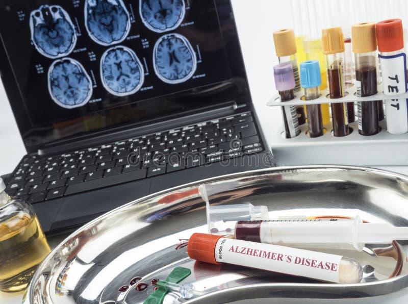 调查补救的血样反对老年痴呆症 免版税库存照片