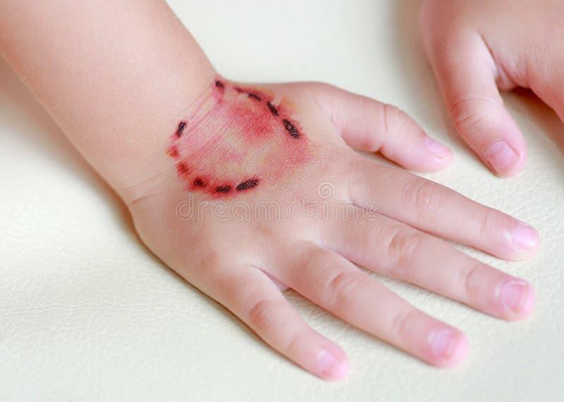 贴纸受伤,并且从叮咬人的牙的血液在儿童手上,装饰纹身花刺 库存图片图片