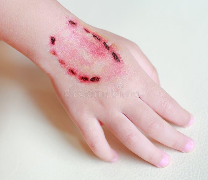 贴纸受伤,并且从叮咬人的牙的血液在儿童手上,装饰纹身花刺 库存照片图片