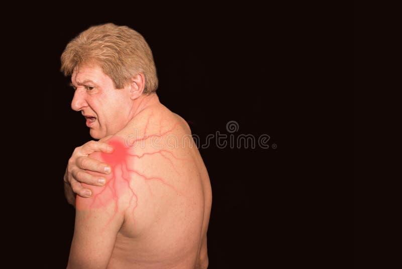 资深赤裸上身的人特写镜头充满肩膀痛苦的在黑背景 免版税库存照片
