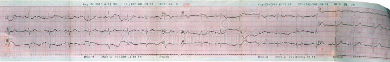 超声心动图(ECG, EKG)心脏读书 免版税库存图片