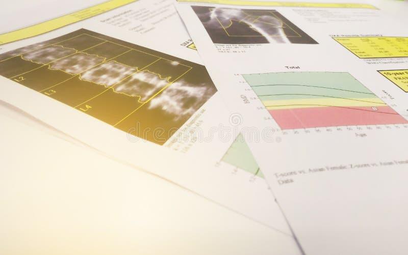软和模糊的图象:骨头密度臀部和lumbarspine结果骨质疏松症 库存图片