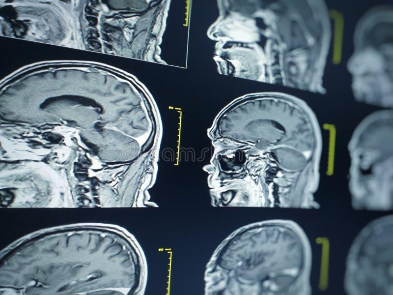 软和模糊的图象MRI脑子显示在LCD moniter的,医疗概念 免版税图库摄影