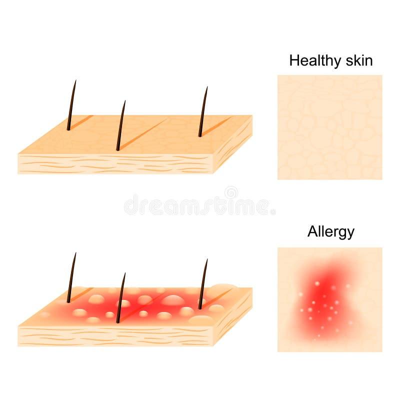 过敏 健康皮肤和过敏反应 向量例证