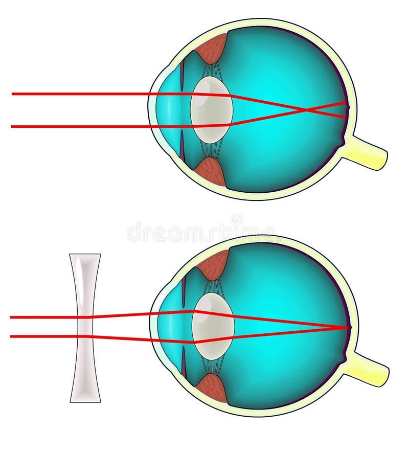 近视绘制的眼睛 向量例证