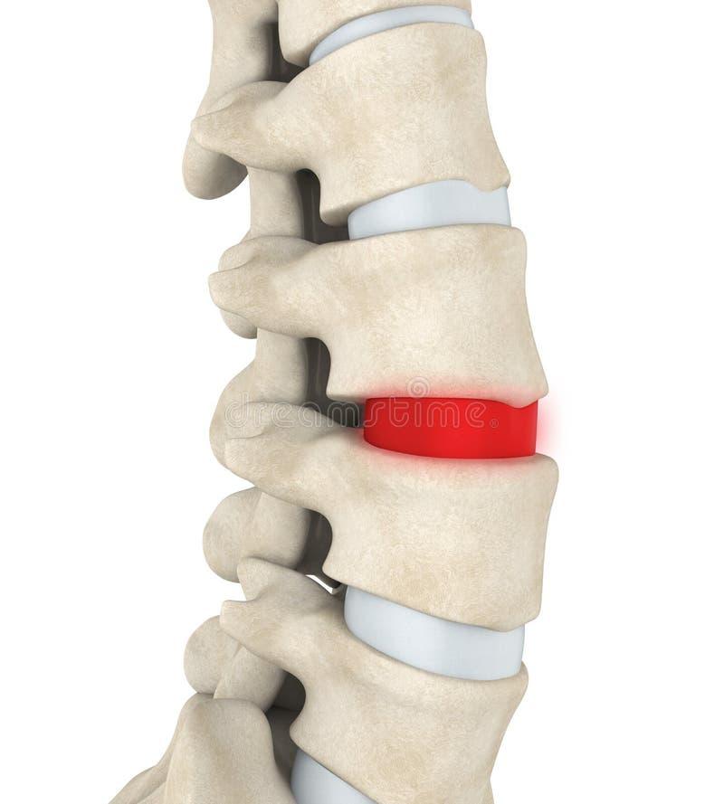 退化人的脊椎的圆盘 向量例证