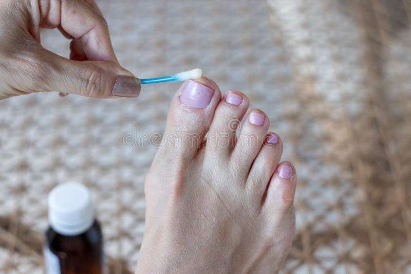 适用于反真菌医学的妇女被传染的大脚趾 库存照片