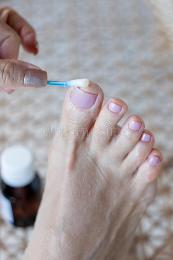 适用于反真菌医学的妇女被传染的大脚趾 免版税图库摄影