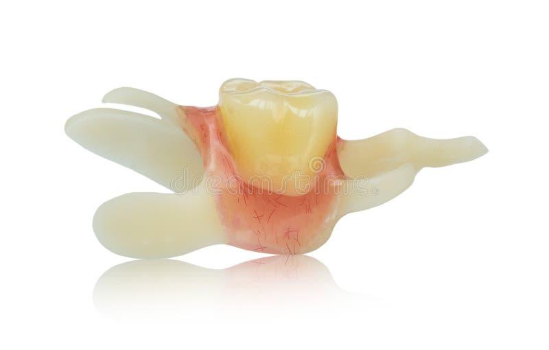 选拔人为假牙-假牙-有弹性假肢 图库摄影