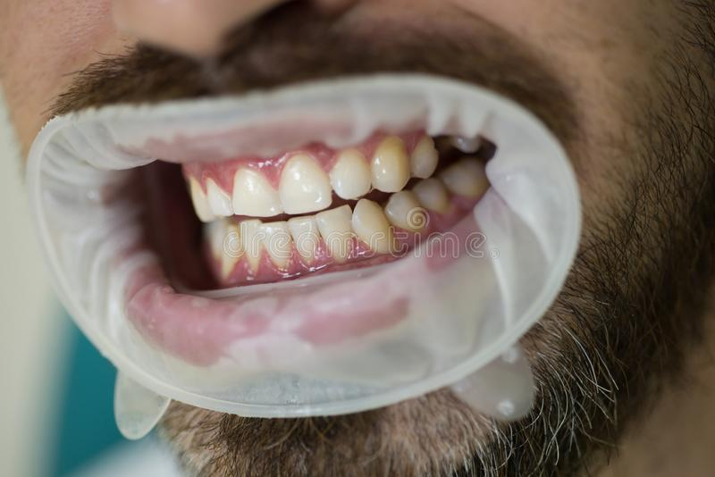 选择牙的颜色年轻人在检查耐心牙的牙医女性牙医与在现代牙齿诊所的镜子 免版税库存图片