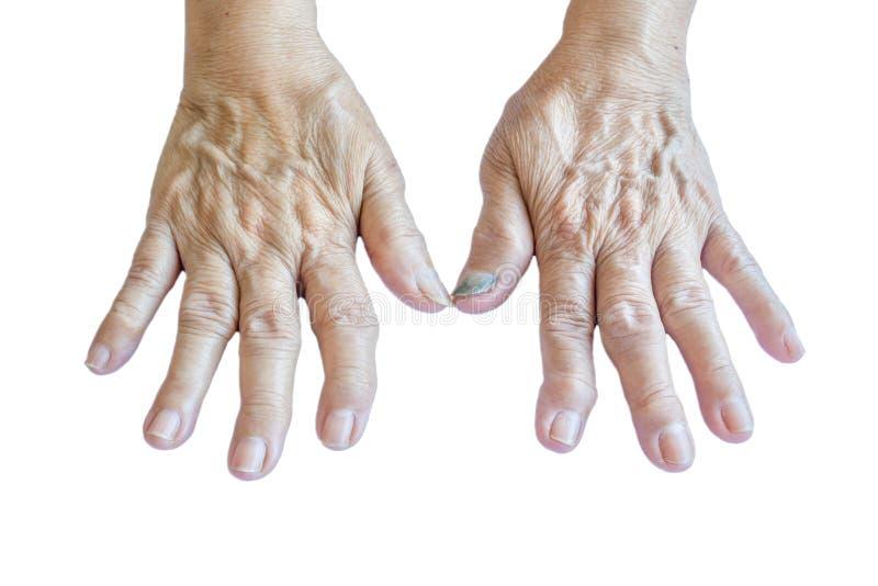 递一个老妇人的骨关节炎 免版税库存照片