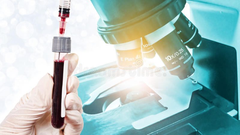 递举行测试的样品血液与实验室显微镜 库存照片