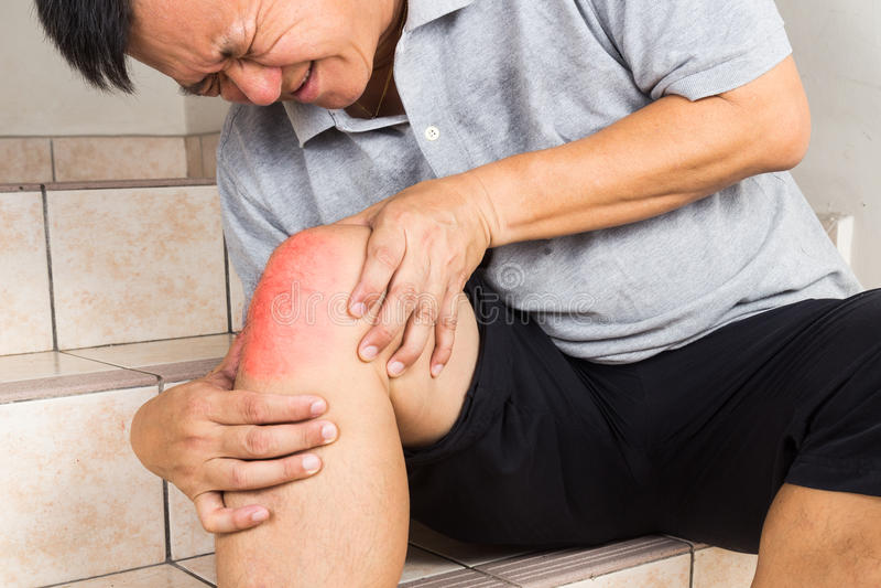 遭受痛苦的膝盖关节的成熟的人供以座位在步 库存照片