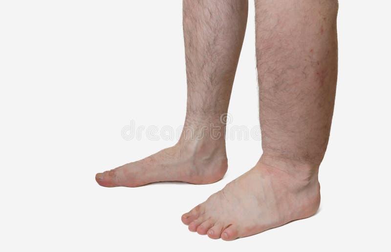 遭受肿鼓害病的患者的腿 库存照片