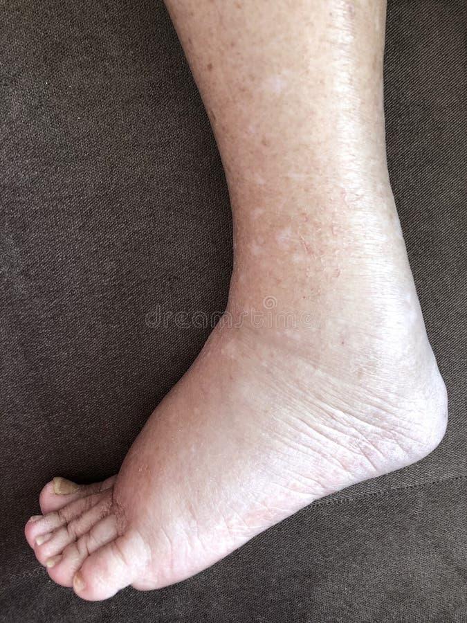 遭受肿鼓病症害病的女性患者的脚 免版税图库摄影