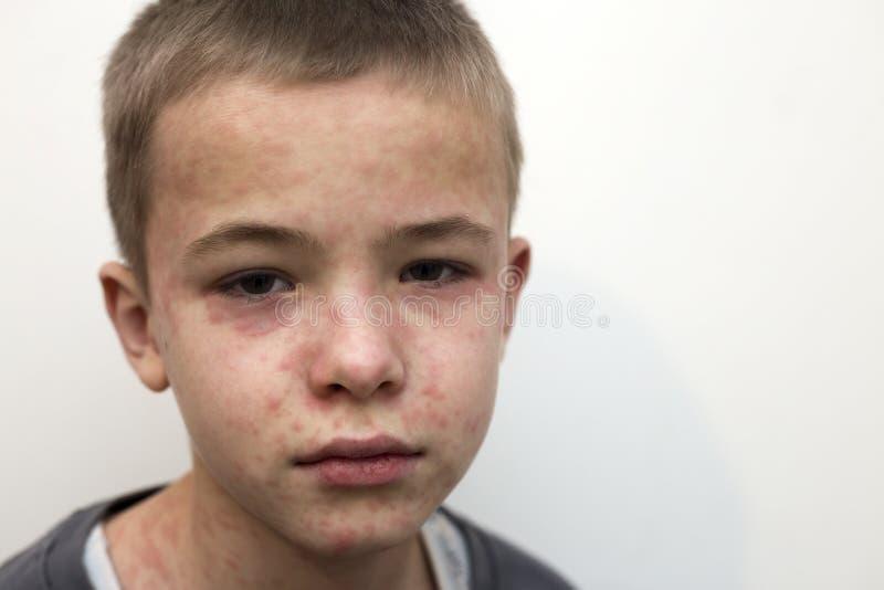 遭受麻疹或水痘的病的哀伤的男孩孩子画象与爆沸在面孔 传染性儿童疾病和 免版税库存照片