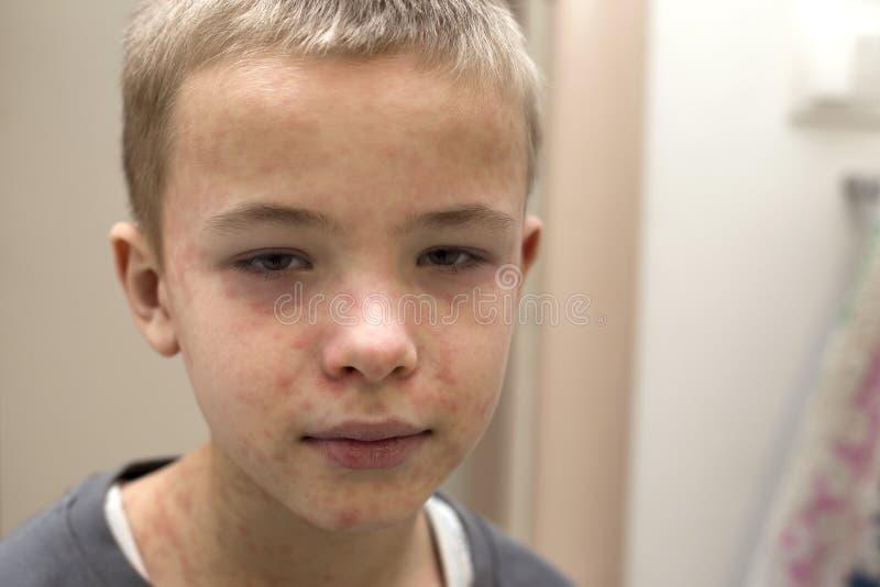 遭受麻疹或水痘的病的哀伤的男孩孩子画象与爆沸在面孔 传染性儿童疾病和 免版税图库摄影
