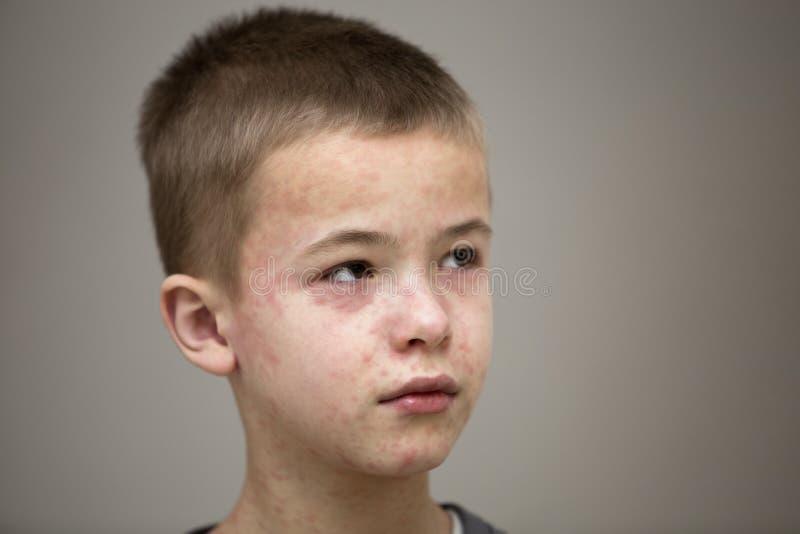 遭受麻疹或水痘的病的哀伤的男孩孩子画象与爆沸在面孔 传染性儿童疾病和 库存照片