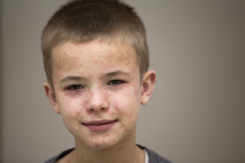 遭受麻疹或水痘的病的微笑的男孩孩子画象与爆沸在面孔 传染性儿童疾病和 库存照片