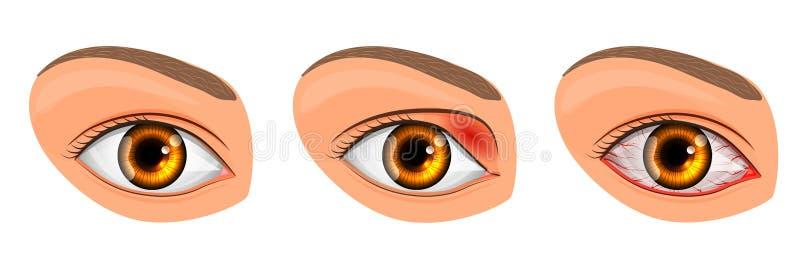 遭受结膜炎和猪圈的眼睛 皇族释放例证