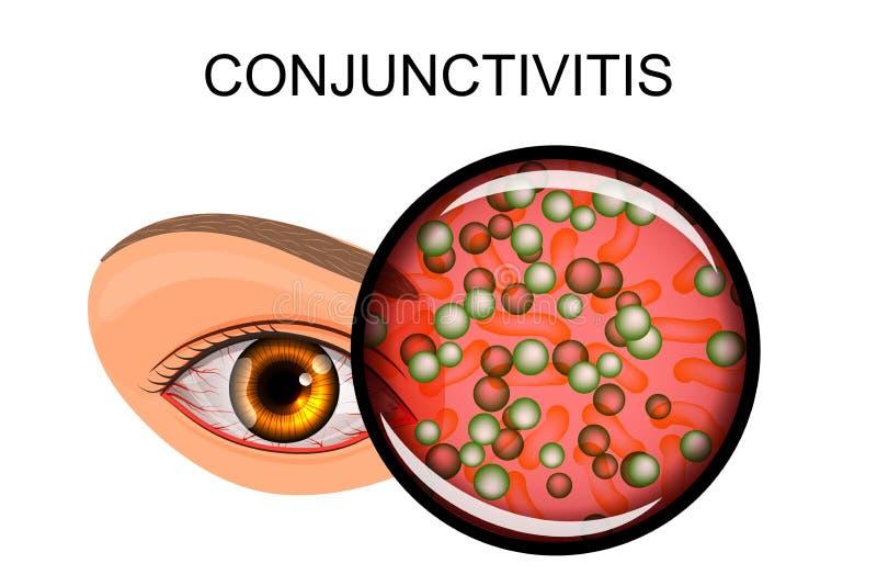 遭受结膜炎和猪圈的眼睛 向量例证