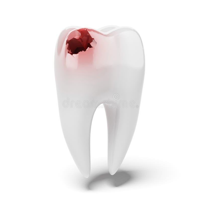 酸疼的牙 向量例证