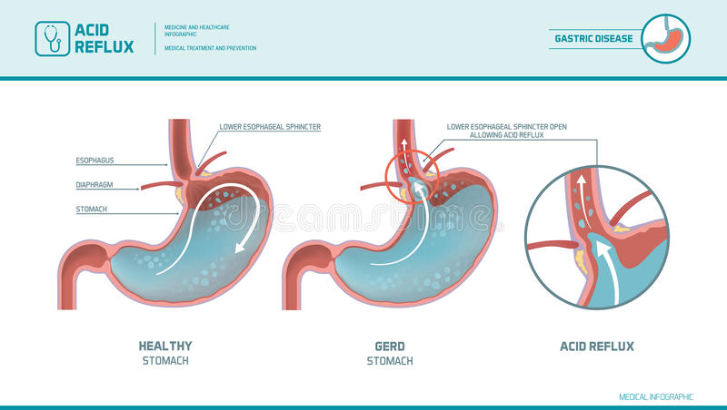 酸infographic倒回和的胃灼热 库存例证