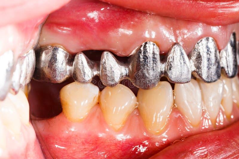 金属依据牙齿桥梁 免版税库存照片