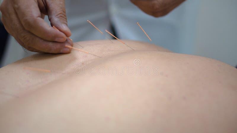 针压法 人的后面特写镜头有被困住的针的  与针灸的中药 人恢复健康在 免版税库存图片