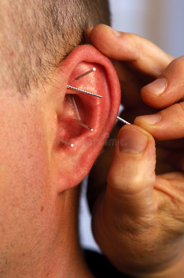 针灸耳朵 免版税库存照片