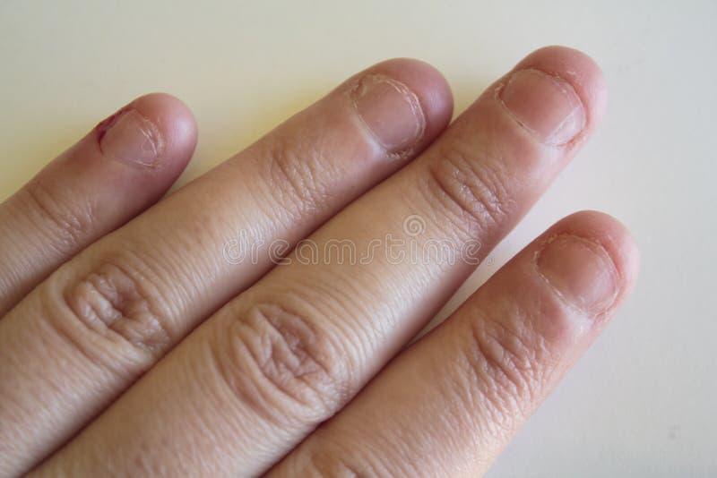 钉子骗子的手指 库存照片