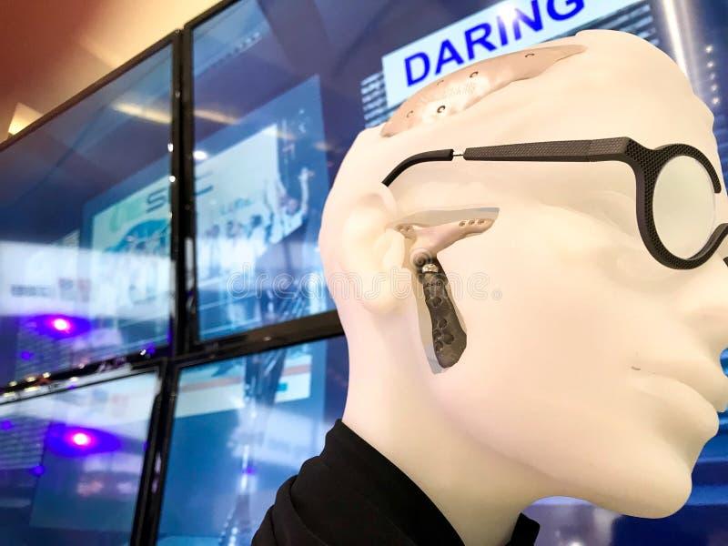 钛3D打印了总TMJ或下颌点 免版税库存图片
